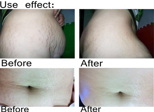AFY Stretch Marks Removal Obesity Postpartum Repair Essential Oil