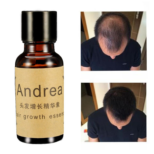 Fast Hair Growth Essence Liquid Treament Original Authentic 100% Hair Loss Essential Oil 20ml SKU382289